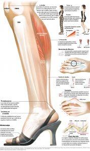 TCP-zapatos inadecuados salud-0001