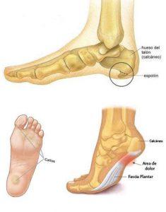 TCP-zapatos inadecuados salud-0003